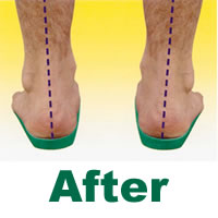 Orthotics - The right fit for you?
